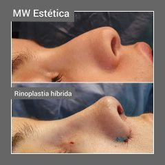 Rinoplastia híbrida - Mw Estética