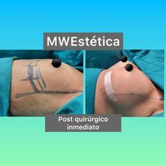 Aumento mamas - Mw Estética