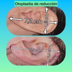 Otoplastia - Mw Estética