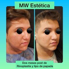Rinoplastia + Lipo de papada - Mw Estética