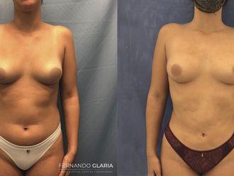 Liposucción-741598