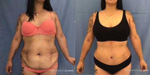 Abdominoplastia - Dr. Fernando Glaria