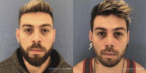 Rinoplastia - Dr. Fernando Glaria