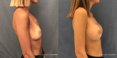 Aumento mamas - Dr. Fernando Glaria