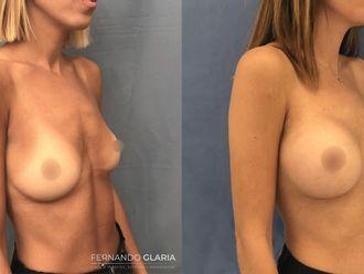 Aumento mamas-741613
