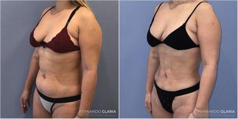 Liposucción - Dr. Fernando Glaria