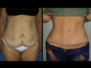 Abdoinomplastia