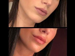 Relleno de labios con acido hialuronico