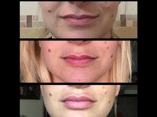 Simetrización - Perfilado - Relleno de labios con ácido hialurónico