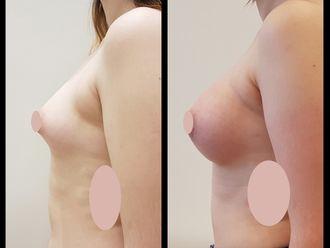 Aumento mamas - 635841