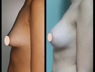 Aumento mamas - 636204