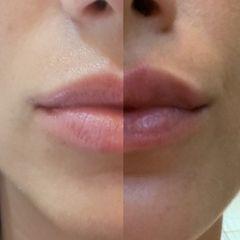 Relleno de labios con ácido hialurónico - antes y después .jpg