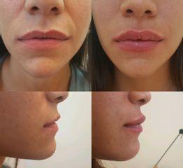 Relleno de labios con ácido hialurónico - antes y después