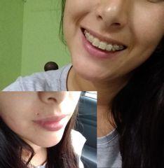 Cicatriz de piercing antes y después
