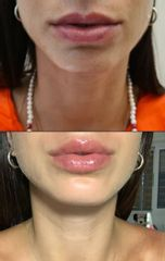 Relleno de labios - Dr. Leandro Di Carlo