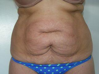 Abdominoplastia - antes