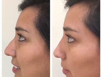 Rejuvenecimiento facial - 627684