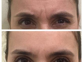 Botox - 628149