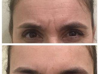 Botox - 628150