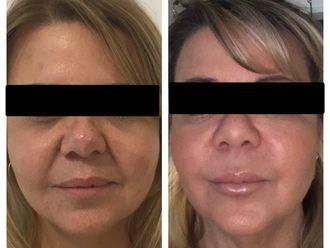 Rejuvenecimiento facial-650025