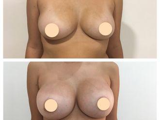 Aumento mamas - 650032
