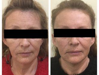 Rejuvenecimiento facial-650034