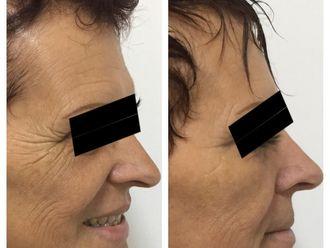 Botox-650051