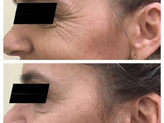 Botox-650064