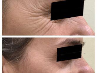 Botox-650069