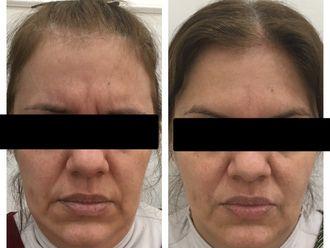 Botox-650072