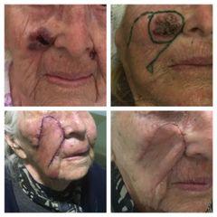 Escisión y reparación de tumores de piel