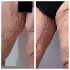 Dermolipectomia de muslos - Dr. Víctor Armesto