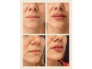 Dr. Honorio Labaronnie - Relleno de labios