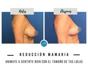 Reducción de mamas - Dr. Honorio Labaronnie