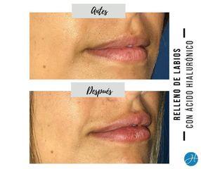 Relleno de labios - Dr. Honorio Labaronnie