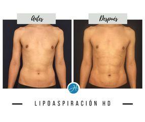 Liposucción - Dr. Honorio Labaronnie