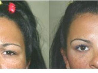 Botox-280862