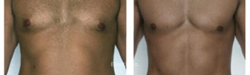 Lipomarcación abdominal y pectoral. De alta definición