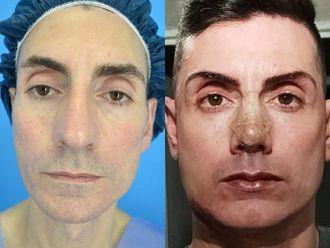 Rellenos faciales-741682