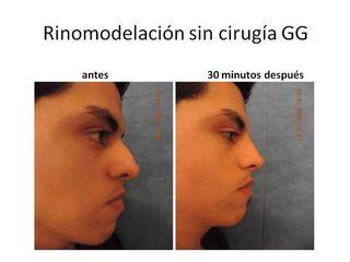 Rinomodelación sin Cirugía