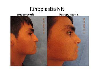 Rinoplastia-525729