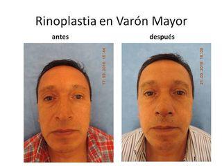 Rinoplastia en Varón Mayor.