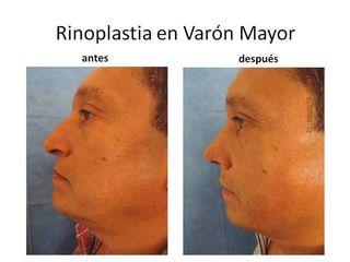 Rinoplastia en Varón Mayor
