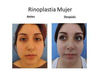 Rinoplastia mujer 2017
