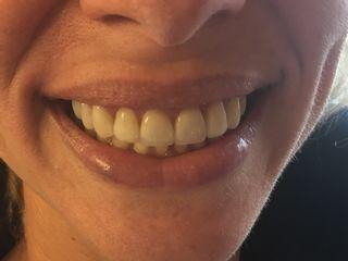 Dental Dique Dra Lissette Ruizcalderon