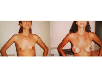 Aumento mamas-648218