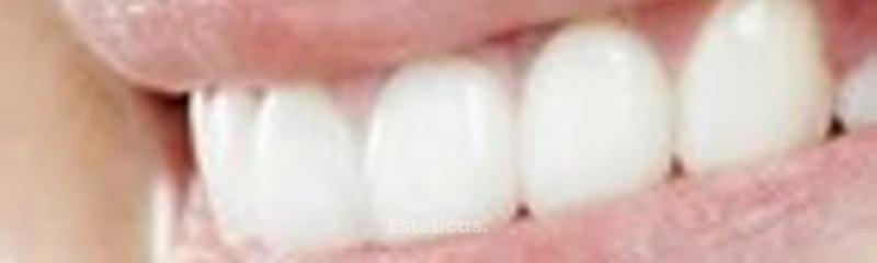 Dental Matters