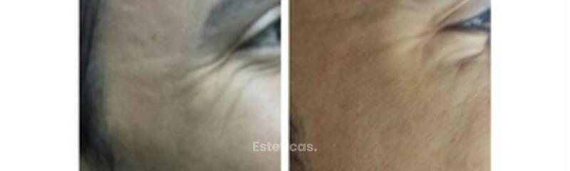 Botox en patas de gallo