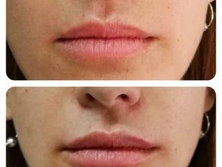 Ácido hialurónico - perfilado de labios