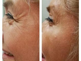 Botox - Rejuvenecimiento facial
